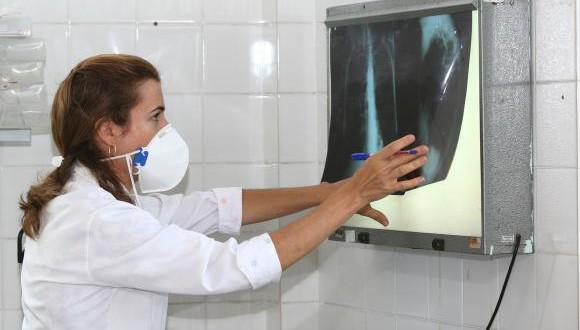 レントゲン写真を見る医師(Agecom Bahia)