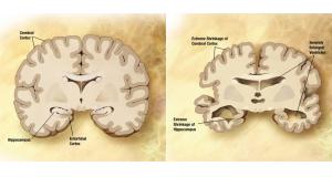通常の老人の脳(左)とアルツハイマー型認知症患者の脳(右)。アルツハイマー型認知症では大脳皮質、海馬の萎縮、および脳室の拡大が見られるようになる(By derivative work: Garrondo [Public domain], via Wikimedia Commons)