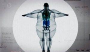 980ポンド(444キロ)の男性の脂肪と骨格