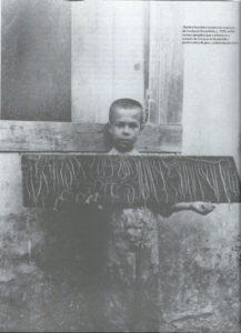体内に宿った寄生虫の標本を持つブラジル人の子供(『桜とコーヒー』74ページ)